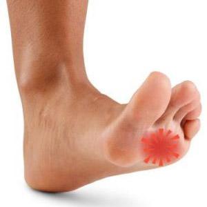 Болевые ощущения в ступне под пальцами во время ходьбы
