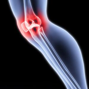 Болит колено - к какому врачу обратиться