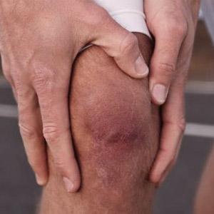 Боли в опухшем коленном суставе без ушиба