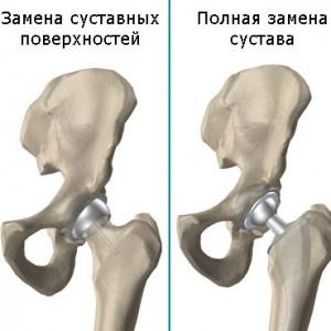 Виды операции