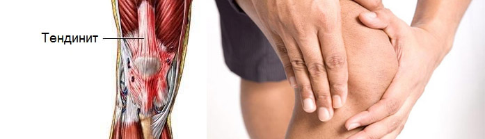 Воспаление в области сустава колена