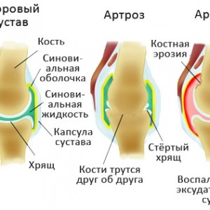 Деформация при артрозе