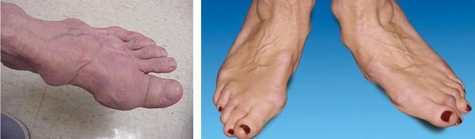 Деформация суставов ног
