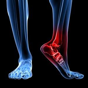 Деформирующий остеоартроз сустава голеностопа