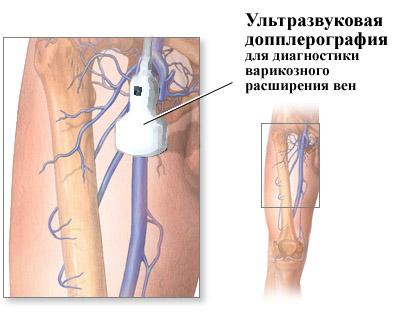 Диагностика варикозного расширения вен