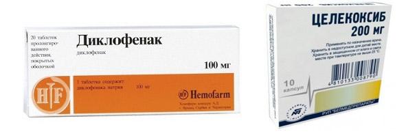 Диклофенак и Целекоксиб при артрозе