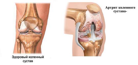 Изменения при артрите