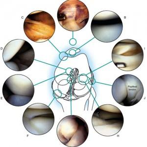 Исследуемые области колена