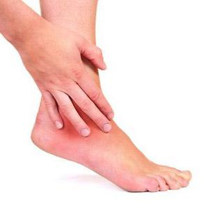 Как вылечить артроз голеностопа на дому