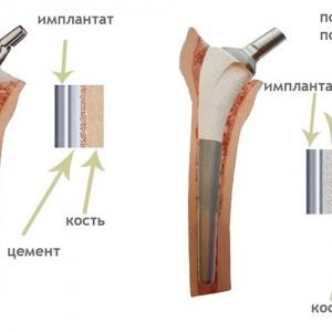 Как делаются протезы