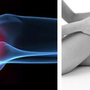 Как лечится артрит
