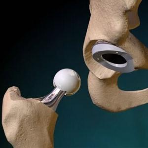 Как проводится замена поврежденного тазобедренного сустава