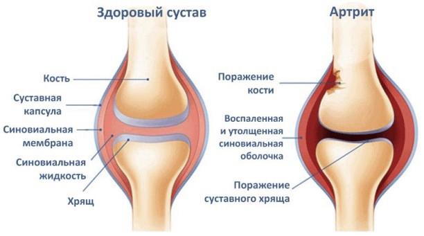 Как проявляется артрит
