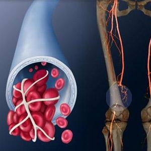 Как проявляется нарушение кровоснабжения нижних конечностей