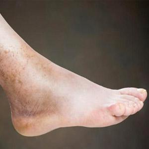 Как проявляется тромбоз глубоких и поверхностных вен ног