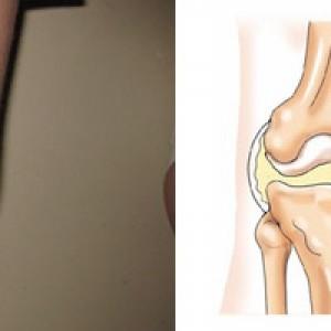 Как снять воспаление сустава