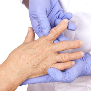 Как у женщин проявляется ревматоидный артрит