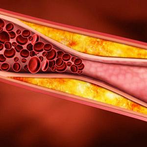 Лечение облитерирующей формы атеросклероза нижних конечностей