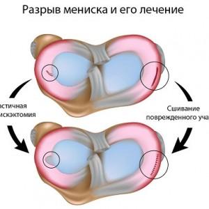 Лечение разрыва