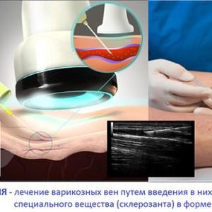 Лечение эхо-склеротерапией
