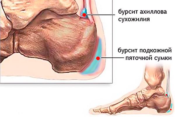 Локализация воспаления