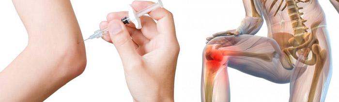Медикаментозная терапия при артрозе