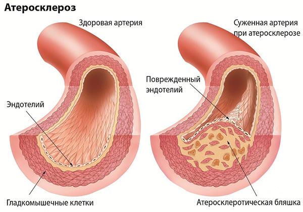 Образование атеросклеротической бляшки