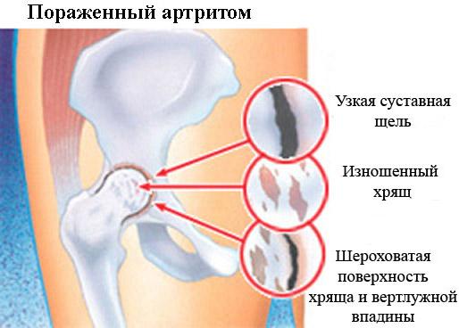 Особенности артрита