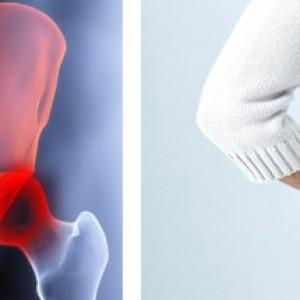 Деформирующий остеоартроз в области тазобедренного сустава