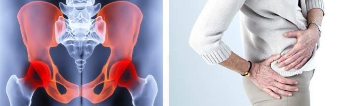 Особенности артроза тазобедренного сустава
