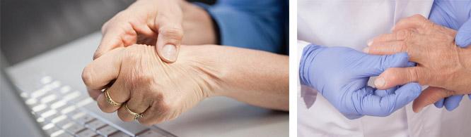 Особенности заболевания суставов