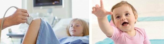 Особенности развития артрита