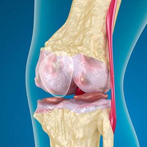 Пателлофеморальный синдром коленного сустава - что это такое