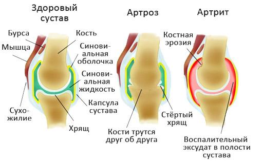 Патологии суставов