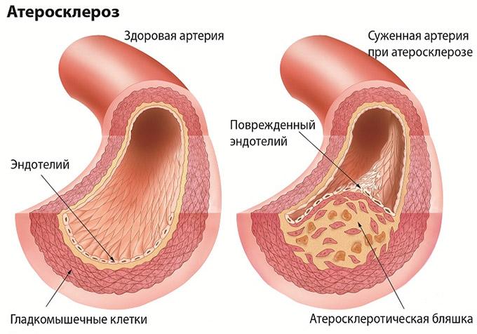 Патология артерий