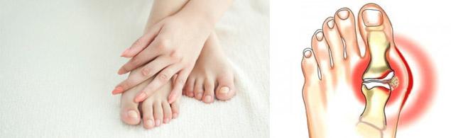 Патология суставов ног