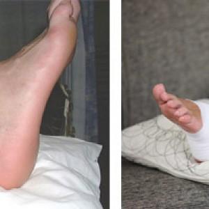 Повреждения голеностопа