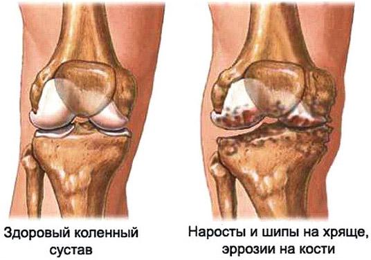 Повреждения колена