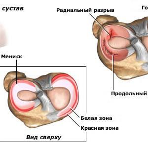 Повреждения менисков