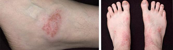 На фотографии поражение кожных покровов экземой