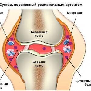 Пораженный сустав
