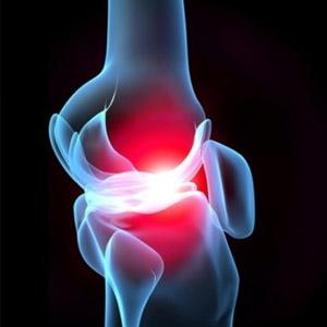 Почему могут хрустеть колени