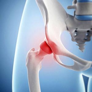 Признаки и лечение вертельного бурсита тазобедренного сустава
