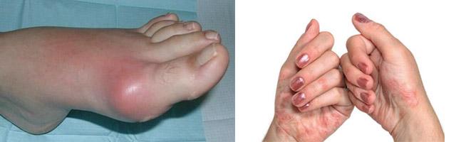 Признаки подагры и артрита