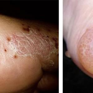 Признаки поражения кожных покровов