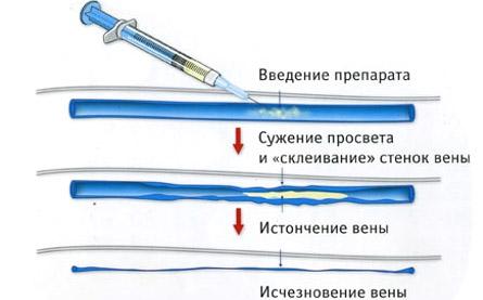 Проведение склеротерапии
