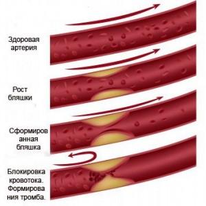 Процесс формирования тромба