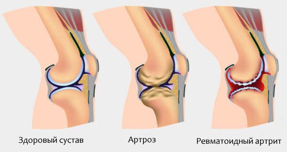 Разновидности патологий суставов