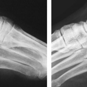 Снимки рентгена