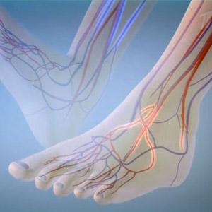 Способы укрепления сосудов и капилляров на ногах